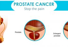 What is the secret to avoiding prostate cancer?