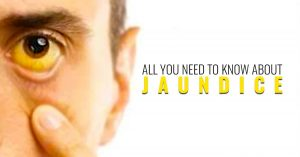 Jaundice treatment